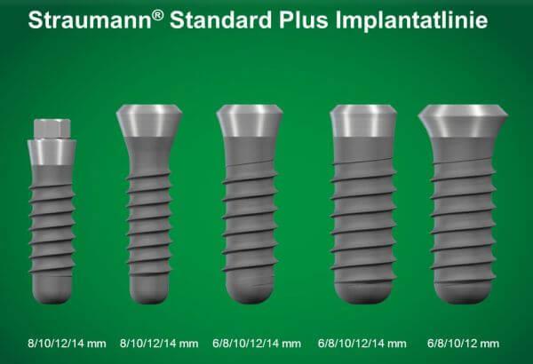качественные имплантаты зубов
