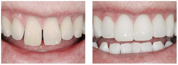 установка композитных виниров на передние зубы