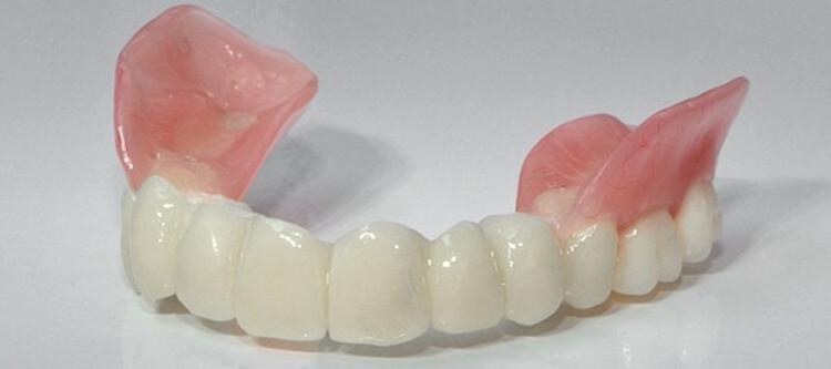 зубной протез сэндвич и его описание