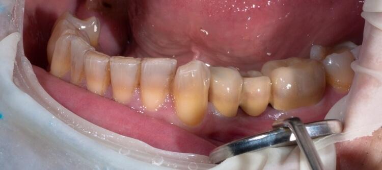 тетрациклиновые зубы у человека