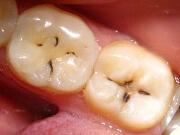 как избавиться от кариеса на зубах в домашних условиях