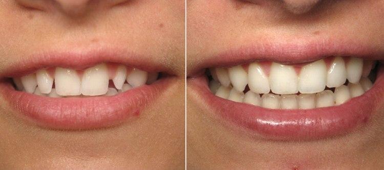 композитные виниры фото улыбки до и после