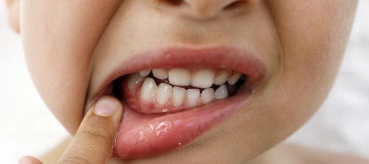 как осуществляется лечение гингивита у детей