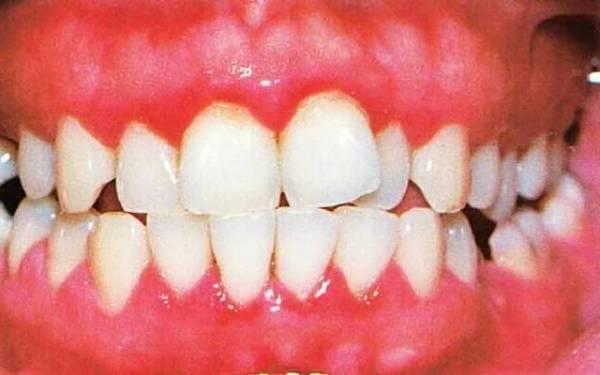 стоматологические методики терапии гингивита