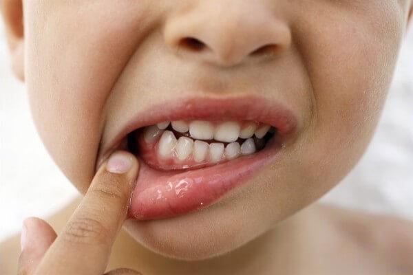 терапия гингивита у ребенка