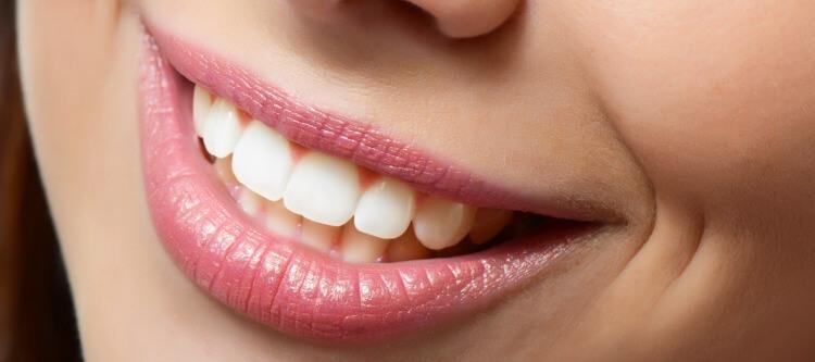 методы наращивания передних зубов