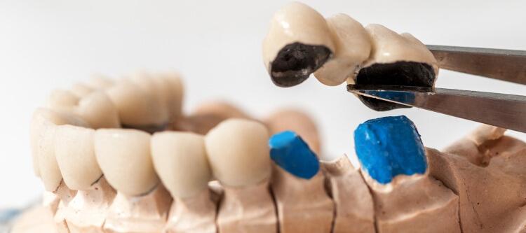 ортопедическая стоматология интервью