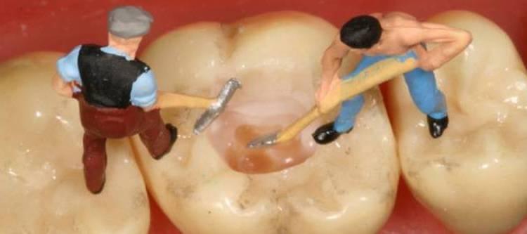 причины разрушения зубов у взрослых и у детей
