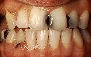 разрушение эмали зубов причины