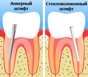 наращивание передних зубов на штифт