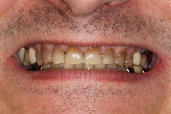 проблема тетрациклиновых зубов