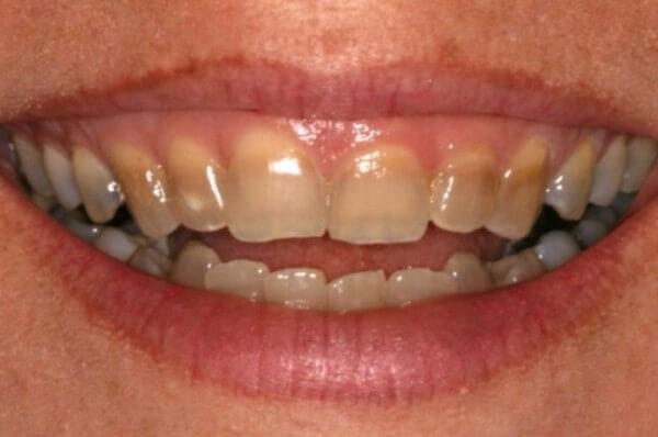 изменения цвета зубной эмали