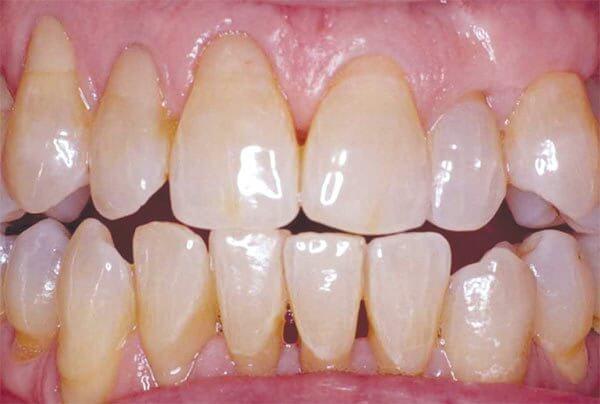 разновидности чувствительности зубов