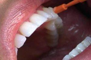 причины появления чувствительности зубов
