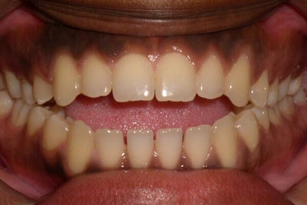 как сказывается открытый прикус зубов на человека