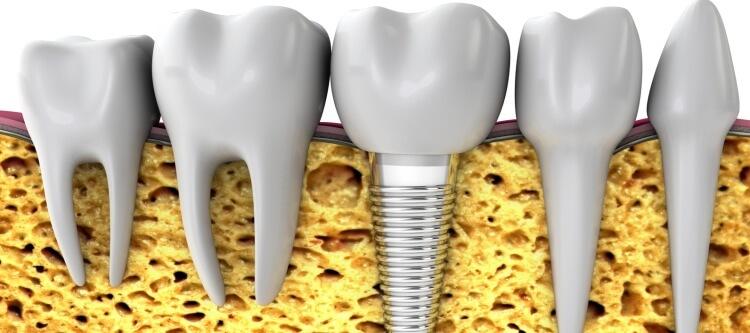 Интервью со стоматологом на тему имплантации зубов