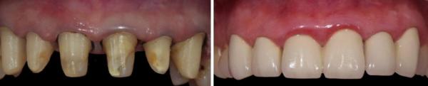вид до и после протезирования