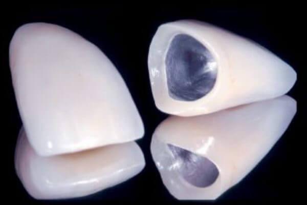 характеристики коронок из металлокерамики