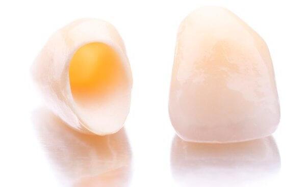 недостатки коронок на зубы из пластика