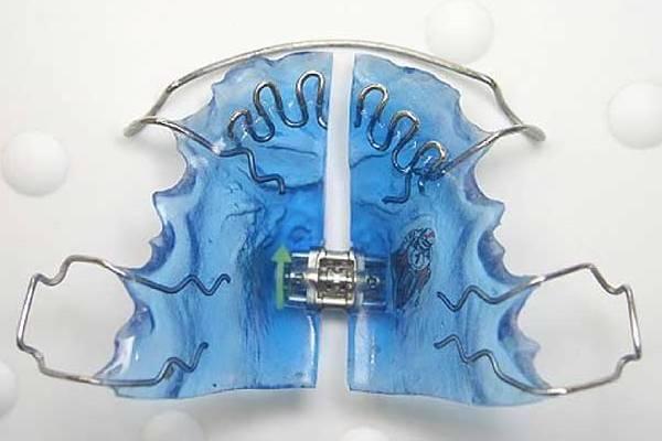 пластины для выравнивания зубов съемного типа