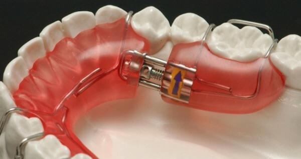стоимость пластин для выравнивания зубов