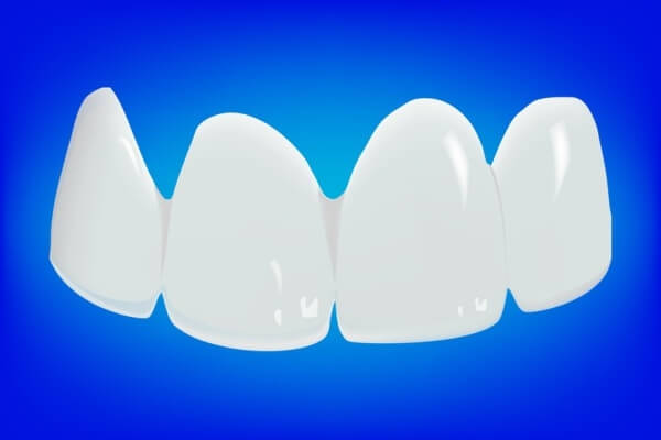 сколько стоит коронка на зуб из пластика
