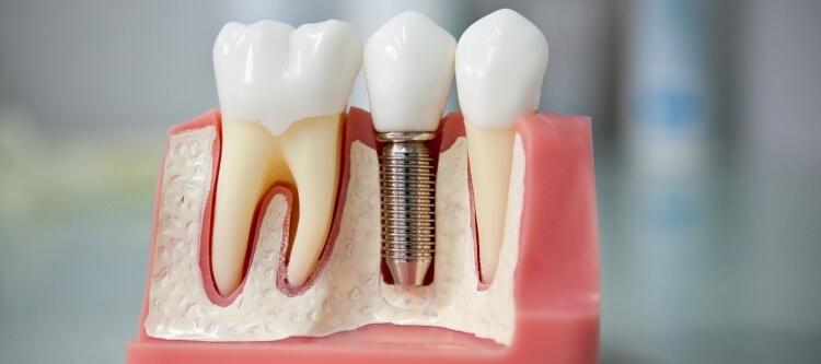 все этапы имплантации зубов