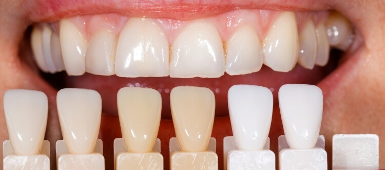 виниры в стоматологии интервью у дантиста