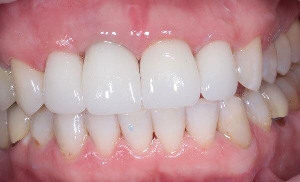 Особенности пластмассовых коронок на передние зубы