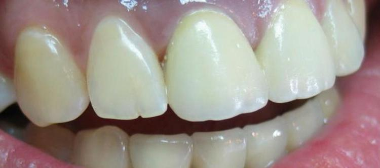 металлокерамические коронки устанавливаемые на передние зубы