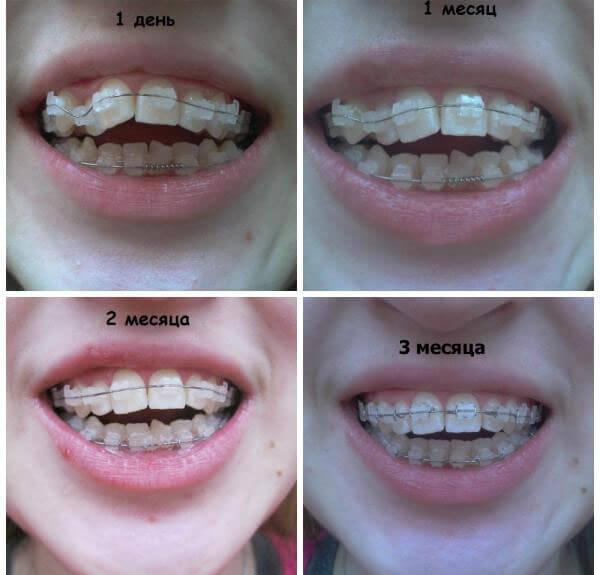 как исправить открытый прикус зубов у детей