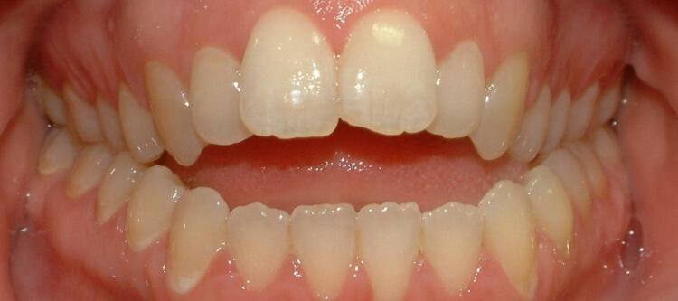 открытый прикус зубов описание и лечение