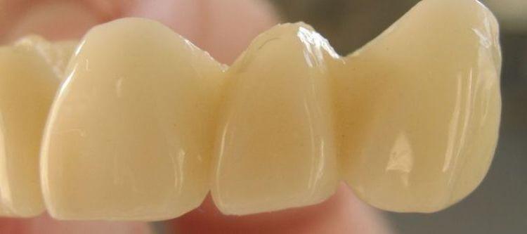 пластмассовые коронки на передние зубы отзывы пациентов стоматологий