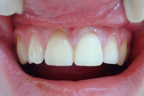 показания к использованию коронок на зубы из пластика