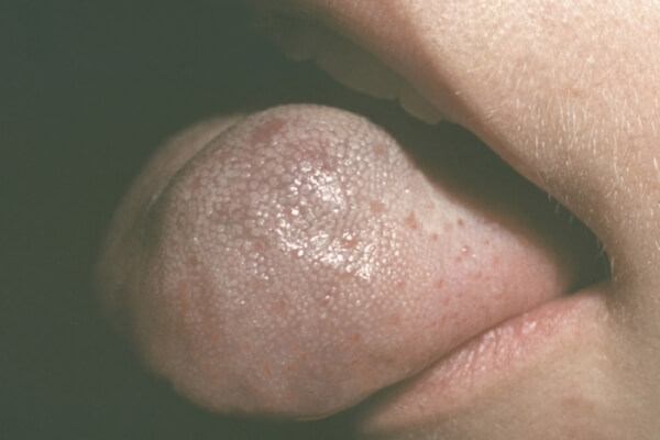 симптомы макроглоссии языка