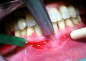 виды вестибулопластики нижней челюсти