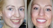 композитный винир фото до и после