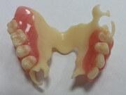 как выглядит одна металлокерамическая коронка на переднем зубе