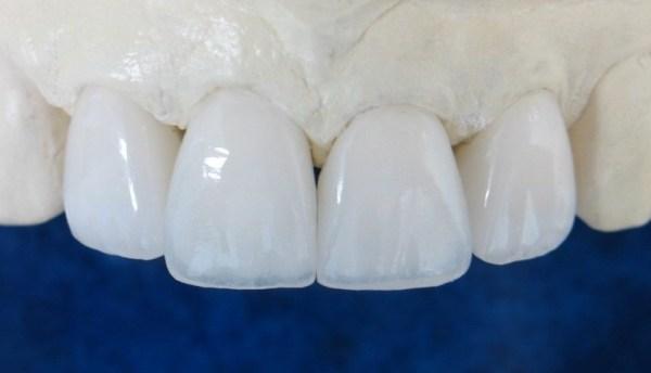 циркониевые коронки на передние зубы и их описание