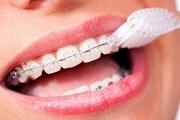 Как правильно и эффективно чистить зубы с брекетами