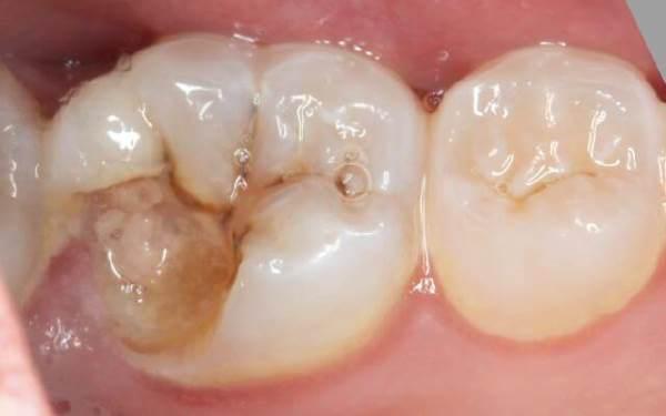 Скол жевательной поверхности заднего зуба