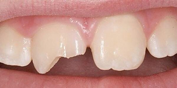 Разновидности сколов передних зубов