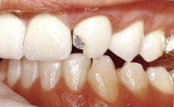 Неполный скол переднего зуба
