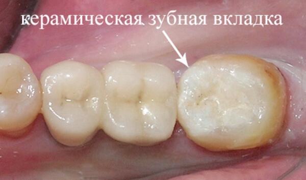 Как восстановить поверхность коренного зуба