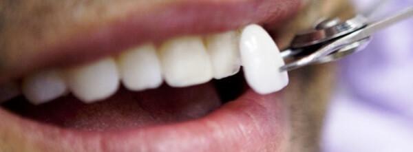 Методы восстановления поверхности переднего зуба