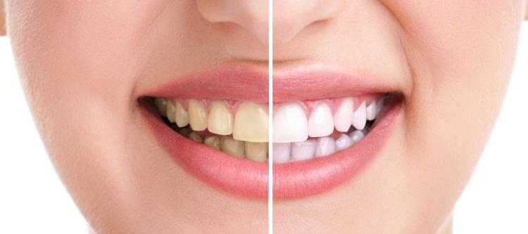 Причины появления желтого налета на зубах