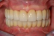 Что представляет собой желтый налет на зубах