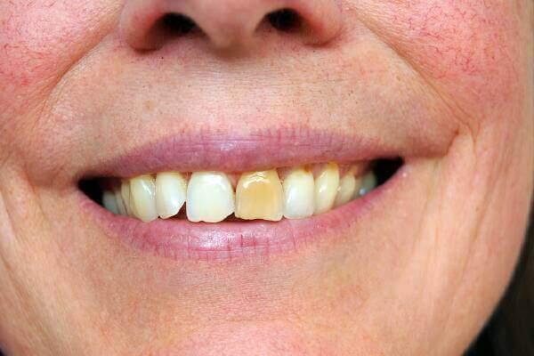 Как убрать желтый налет на одном зубе