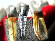 Особенности имплантатов фирмы Нобель