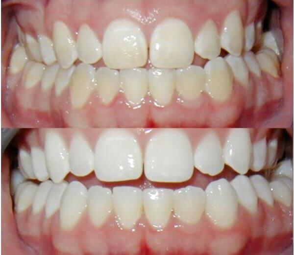 Эффективно ли отбеливание зубов содой